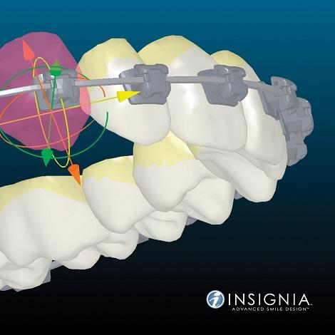 Insignia dental Clinica Mariana Sacoto Navia Expertos en Ortodoncia