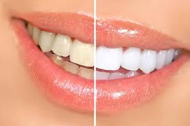 blanqueamiento dental Clinica Mariana Sacoto Navia