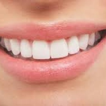 carillas dentales Clinica Mariana Sacoto Navia