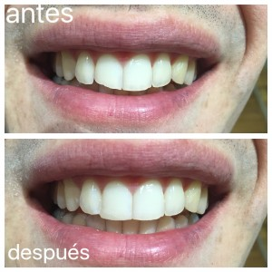 Clinica Mariana Sacoto Navia Especialistas  Estetica Dental Barcelona