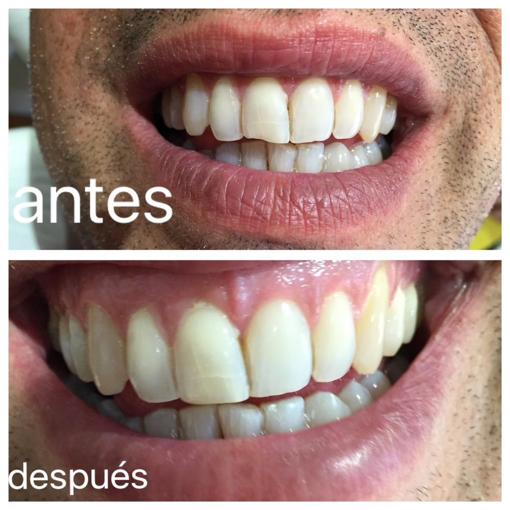 Clinica Mariana sacoto Navia expertos en diseño de sonrisas Barcelona