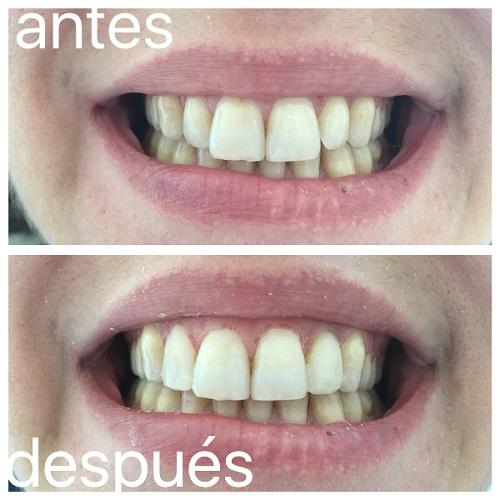 Clínica Mariana Sacoto Navia estética Dental Barcelona Carillas Dentales Barcelona