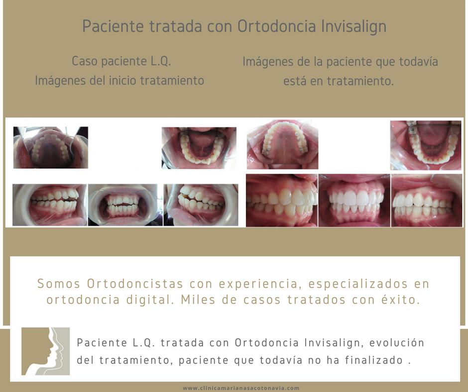 Clinica Mariana Sacoto Navia Expertos en Invisalign Barcelona Terrassa Cornella