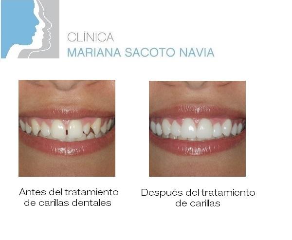Clinica Mariana Sacoto Navia Estética Dental Tratamiento Carillas Dentales Barcelona