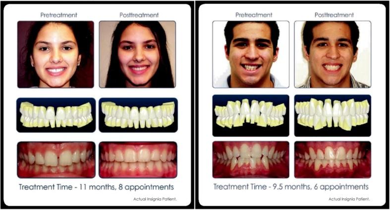 brackets personalizados sonrisas perfectas insignia clinica Mariana Sacoto Navia