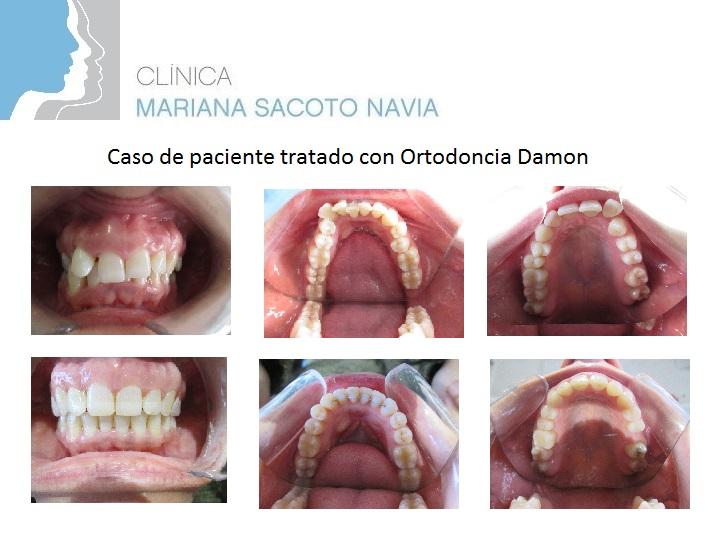 Clínica Mariana Sacoto Navia Ortodoncia Damon Barcelona