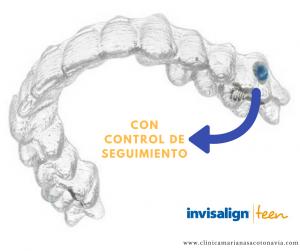 Clínica Exclusiva de Invisalign Doctora Mariana Sacoto Navia Invisalign Teen Barcelona Cornella Terrassa