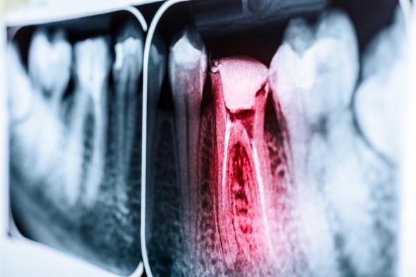 Clinica Mariana Sacoto Navia Expertos en Ortodoncia en Barcelona
