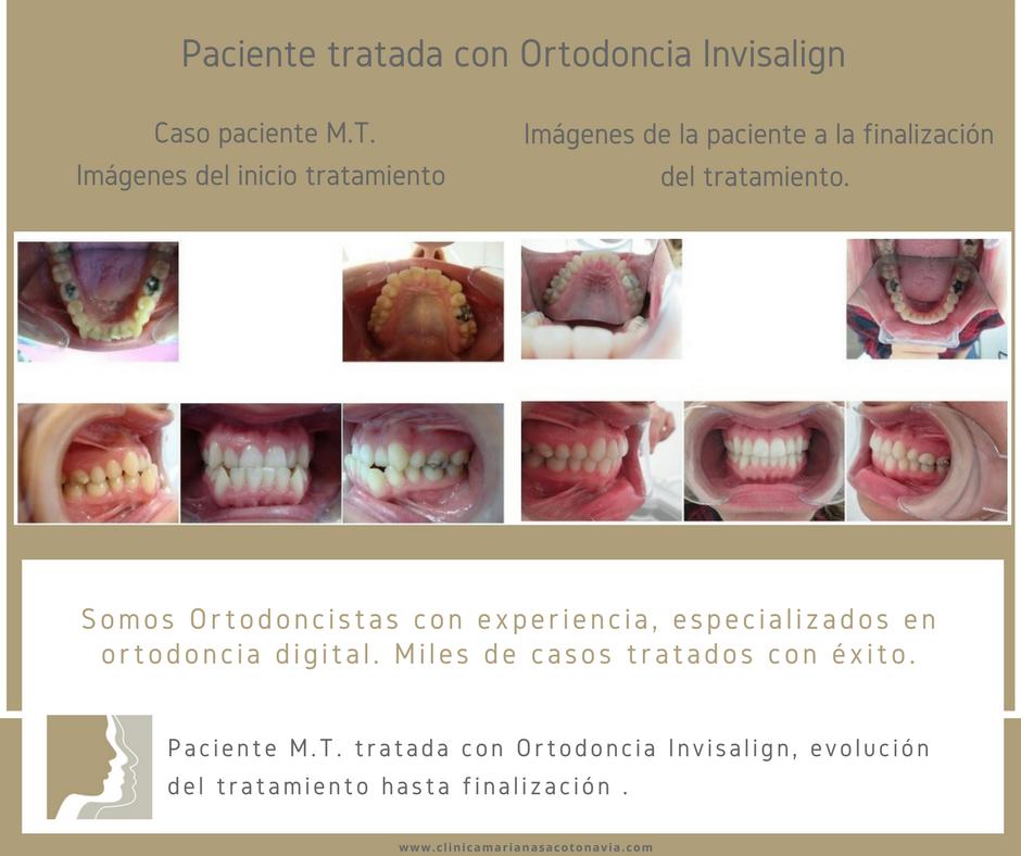 Clínica de Ortodoncia Mariana Sacoto Navia Invisalign Barcelona Cornellá y Terrassa