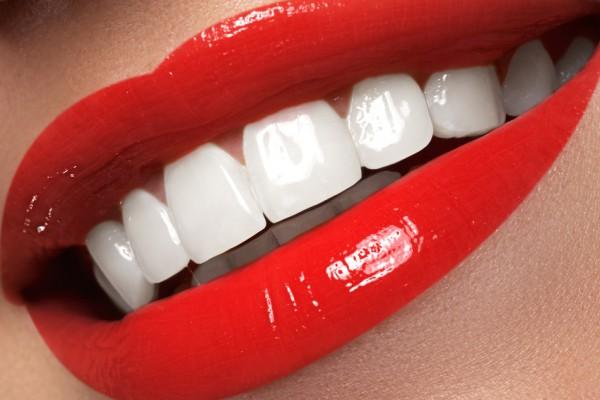 Promoción Blanqueamiento Dental. Sonrisa alineada y sana.