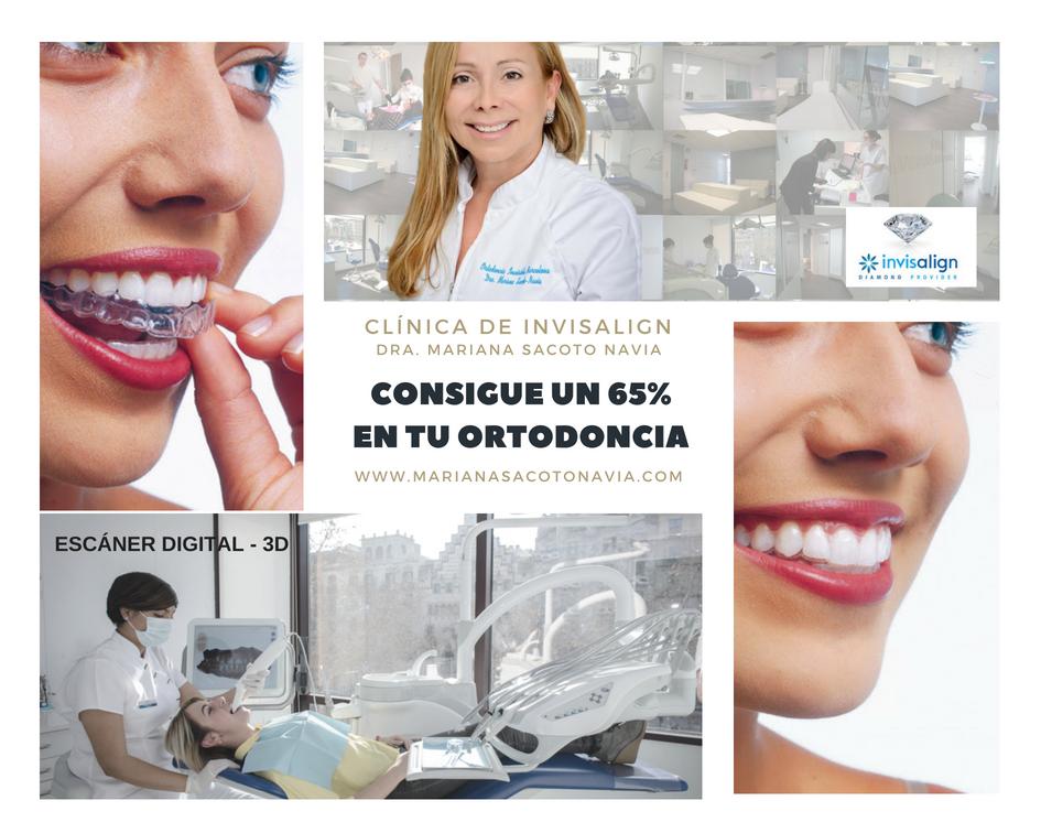 Clinica Exclusiva de Invisalign Doctora Mariana Sacoto Navia Promocion Invisalign