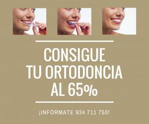Clinica Exclusiva de Invisalign Doctora Mariana Sacoto Navia Promocion to ortodoncia al 65