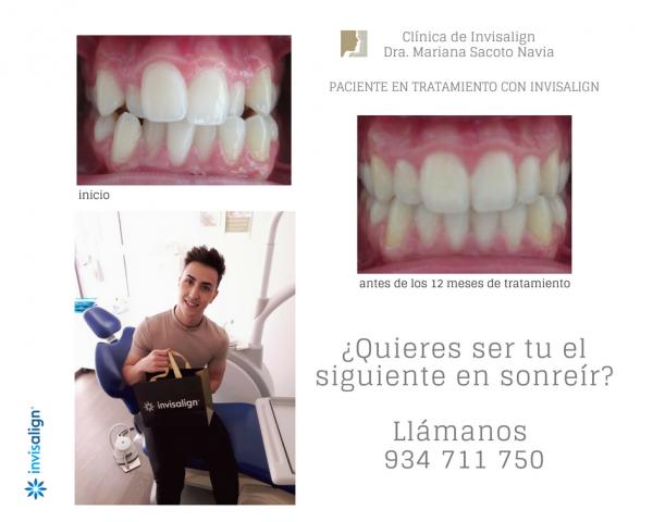 Paciente tratado con Invisalign en nuestra Clinica Mariana Sacoto Navia Expertos en Invisalign Barcelona