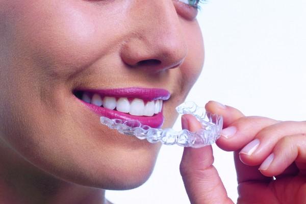 Clinica Mariana Sacoto Navia Expertos en Invisalign Ortodoncia Transparente comodidad no sabran que llevas aparatos de ortodoncia