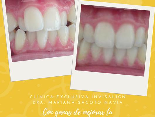 Clinica de Invisalign Doctora Mariana Sacoto Navia