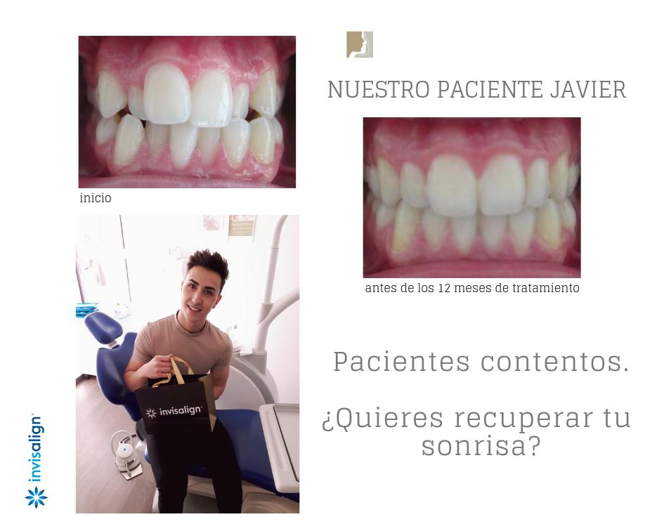 Clinica Invisalign Doctora Mariana Sacoto Navia