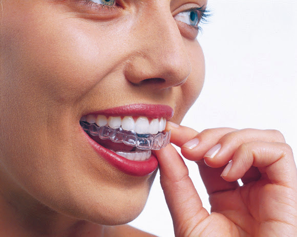 Clínca Exclusiva Invisalign Doctora Mariana Sacoto Navia Expertos en Ortodoncia Invisible