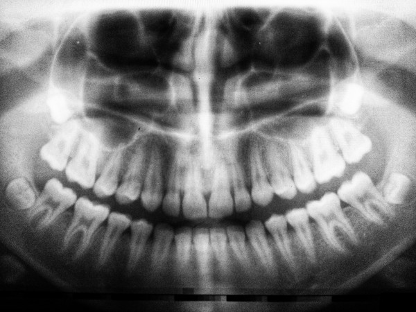 la importancia de a oclusion dental