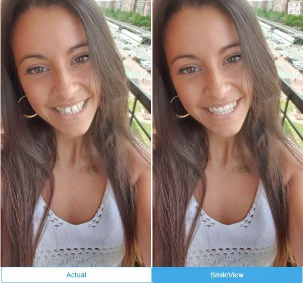 Clínica-Dra.-mariana-Sacoto-Navia-Expertos-en-Ortodoncia-invisible-Invisalign-e-Barcelona-Smile-View-visita-gratis.